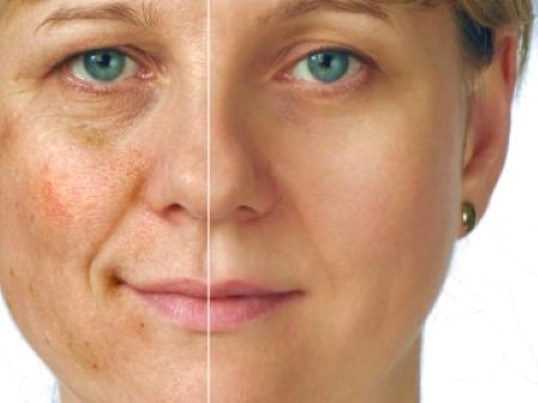 Post Inflammatory Hyperpigmentation Natural Treatment